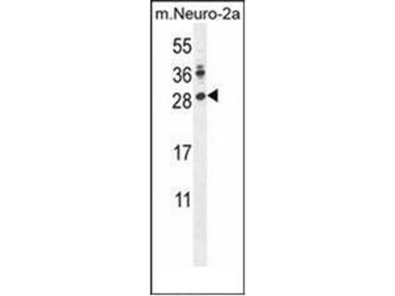 Western Blotting (WB) image for anti-Lin-28 Homolog A (C. Elegans) (LIN28A) (AA 115-147), (Middle Region) antibody (ABIN953174)