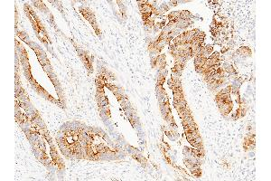 Image no. 1 for anti-Deleted in Malignant Brain Tumors 1 (DMBT1) (AA 1-220) antibody (ABIN1999079)