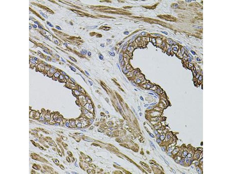 Image no. 1 for anti-Filamin B, beta (FLNB) antibody (ABIN6569221)