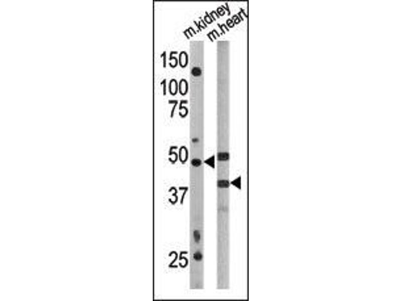Western Blotting (WB) image for anti-ATG4 Autophagy Related 4 Homolog A (S. Cerevisiae) (ATG4A) (AA 1-30) antibody (ABIN388491)