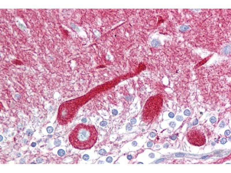 Immunohistochemistry (IHC) image for anti-Carboxypeptidase E (CPE) (N-Term) antibody (ABIN2787685)