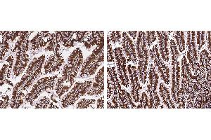 Image no. 1 for anti-Regenerating Islet-Derived 3 alpha (REG3A) (AA 1-174) antibody (ABIN2692915)