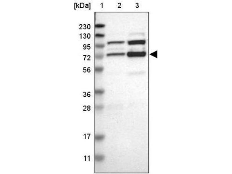Western Blotting (WB) image for anti-RNA Binding Motif Protein 14 (RBM14) antibody (ABIN4349581)