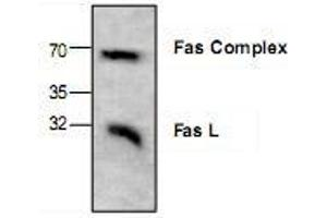 Western Blotting (WB) image for anti-FASL antibody (Fas Ligand (TNF Superfamily, Member 6)) (C-Term) (ABIN223069)