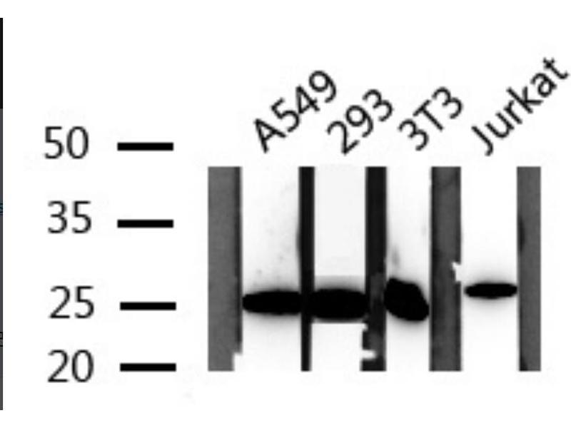 Image no. 2 for anti-TIMP Metallopeptidase Inhibitor 4 (TIMP4) antibody (ABIN6269430)
