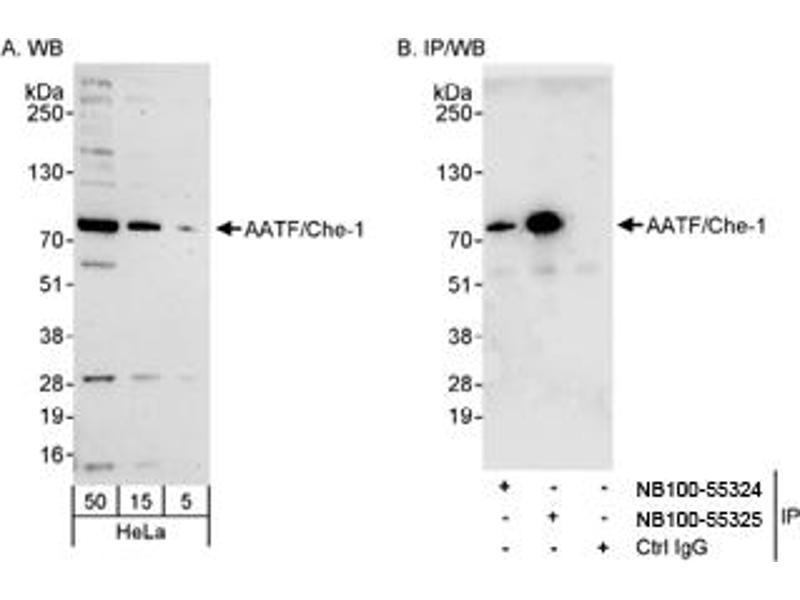Western Blotting (WB) image for anti-Apoptosis Antagonizing Transcription Factor (AATF) (AA 125-175) antibody (ABIN188634)