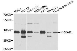 Image no. 1 for anti-Protein Kinase, AMP-Activated, beta 1 Non-Catalytic Subunit (PRKAB1) antibody (ABIN6135856)