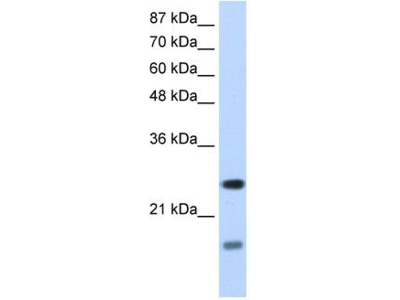 Western Blotting (WB) image for anti-Signal Recognition Particle 14kDa (Homologous Alu RNA Binding Protein) (SRP14) (N-Term) antibody (ABIN183958)