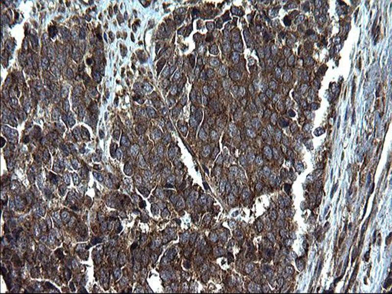 Immunohistochemistry (IHC) image for anti-PDCD6IP antibody (Programmed Cell Death 6 Interacting Protein) (ABIN2671799)