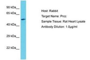 Image no. 1 for anti-Papillary Renal Cell Carcinoma (Translocation-Associated) (PRCC) (C-Term) antibody (ABIN6750395)