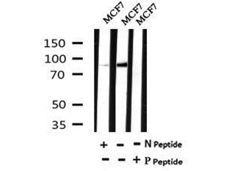 Image no. 4 for anti-Forkhead Box O3 (FOXO3) (pSer644) antibody (ABIN6269665)