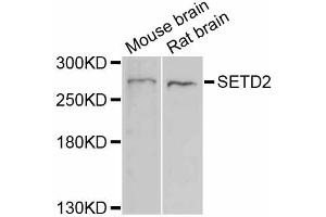 Image no. 1 for anti-SET Domain Containing 2 (SETD2) antibody (ABIN6290482)