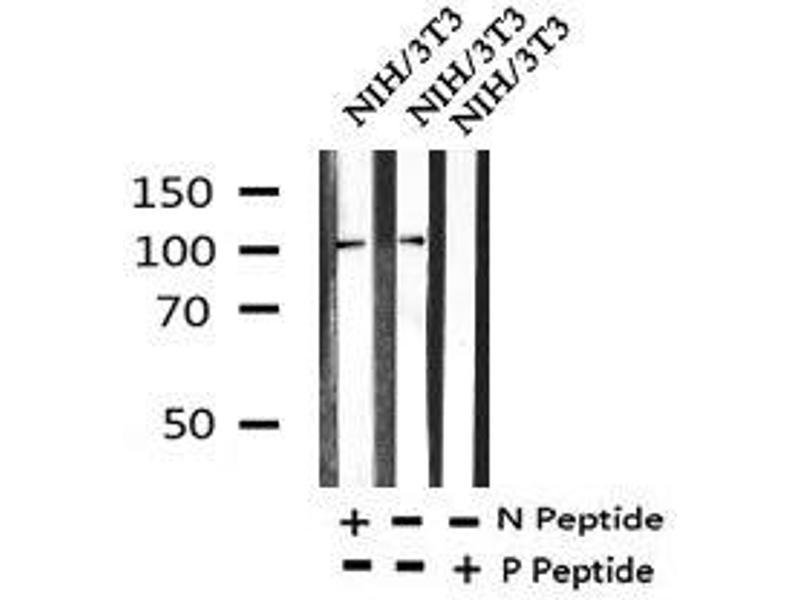 Western Blotting (WB) image for anti-EPH Receptor A2 (EPHA2) (pThr587) antibody (ABIN6269979)