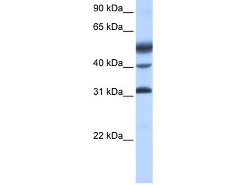 Western Blotting (WB) image for anti-Activating Transcription Factor 1 (AFT1) (C-Term) antibody (ABIN2780654)
