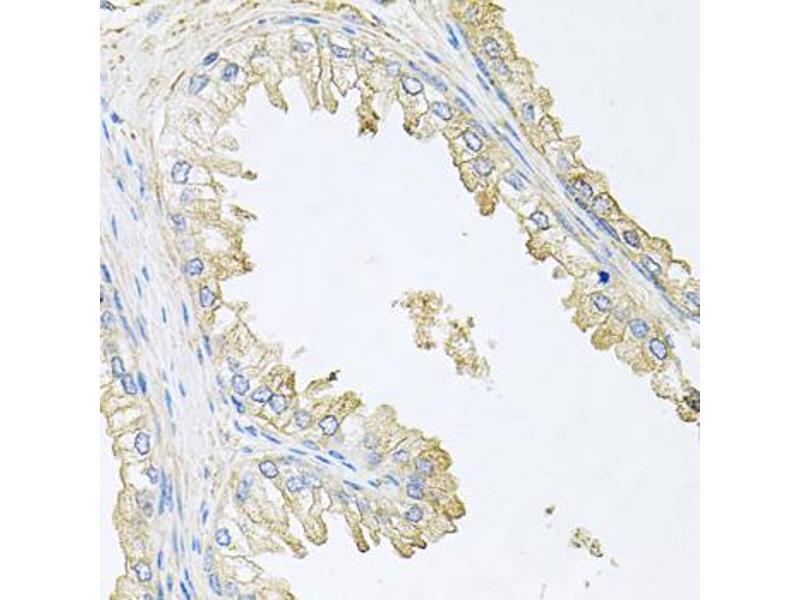 Image no. 2 for anti-Protein Phosphatase 3, Regulatory Subunit B, alpha (PPP3R1) antibody (ABIN6566705)