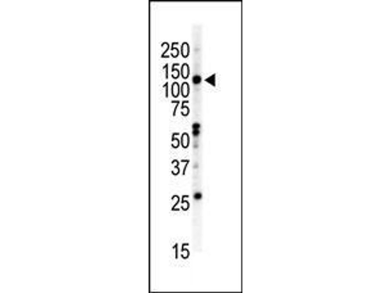Western Blotting (WB) image for anti-EPH Receptor B2 antibody (EPHB2) (AA 1021-1050) (ABIN391920)