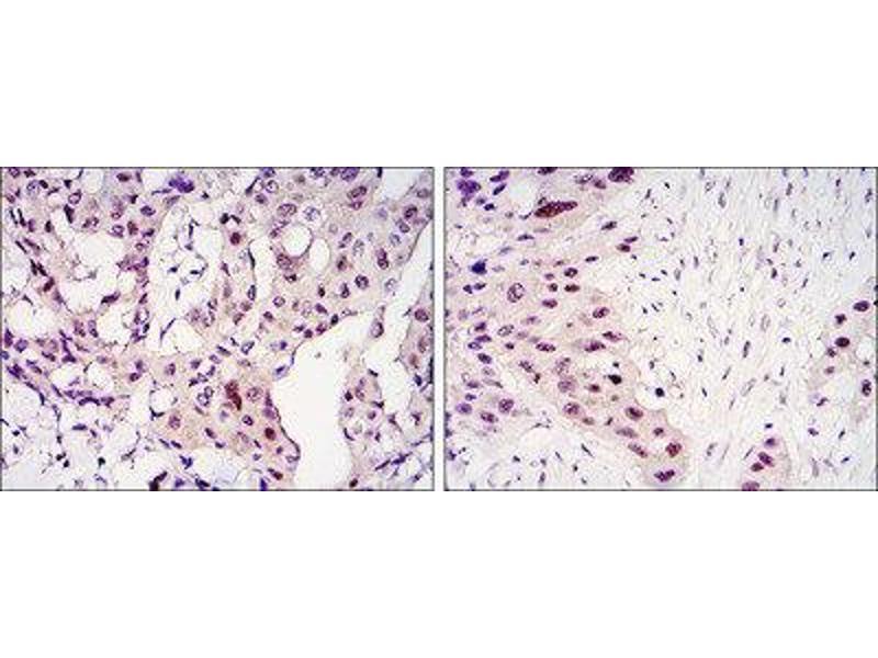 Immunohistochemistry (IHC) image for anti-Signal Transducer and Activator of Transcription 3 (Acute-Phase Response Factor) (STAT3) antibody (ABIN1845828)