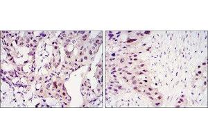 Immunohistochemistry (IHC) image for anti-Signal Transducer and Activator of Transcription 3 (Acute-Phase Response Factor) (STAT3) antibody (ABIN1845828)