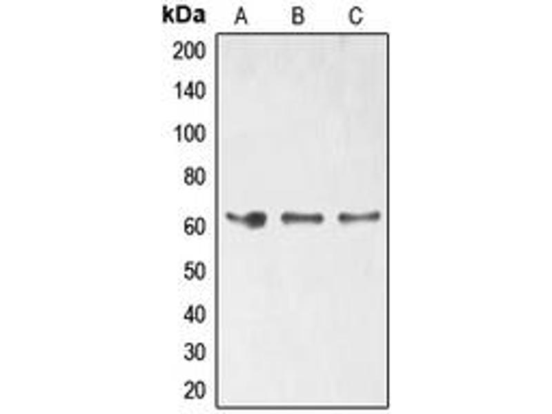 Western Blotting (WB) image for anti-ELK1, Member of ETS Oncogene Family (ELK1) (C-Term), (pSer389) antibody (ABIN2704758)