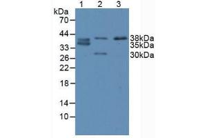 Image no. 3 for anti-Caudal Type Homeobox 2 (CDX2) (AA 1-313) antibody (ABIN6000356)
