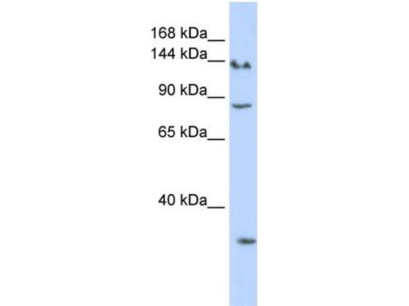 Western Blotting (WB) image for anti-SIN3A antibody (SIN3 Transcription Regulator Homolog A (Yeast)) (N-Term) (ABIN404805)