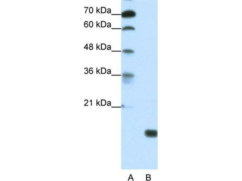Western Blotting (WB) image for anti-TGFB-Induced Factor Homeobox 2-Like, Y-Linked (TGIF2LY) (Middle Region) antibody (ABIN183296)