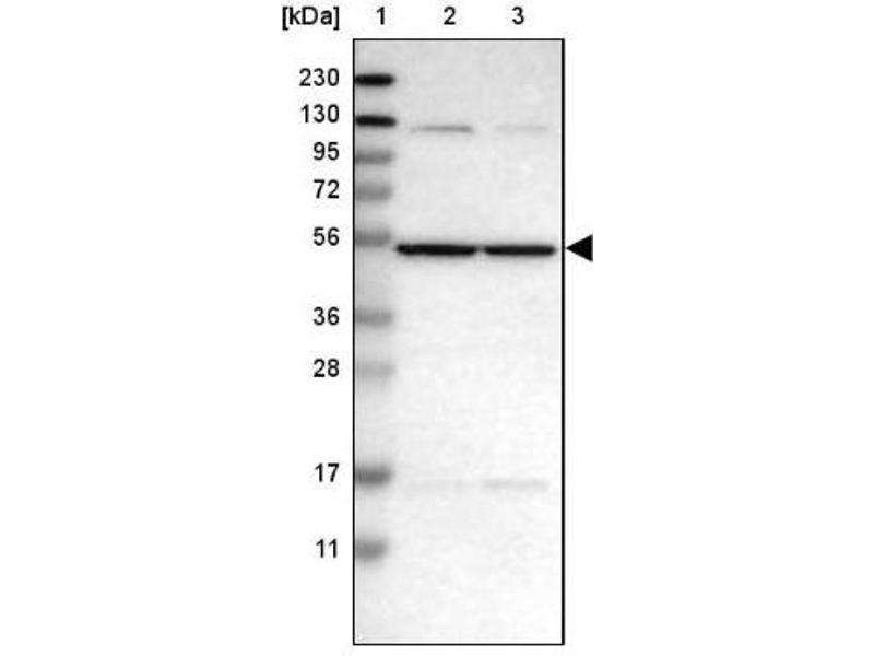 Image no. 3 for anti-Carbohydrate (N-Acetylgalactosamine 4-Sulfate 6-O) Sulfotransferase 15 (CHST15) antibody (ABIN4287709)