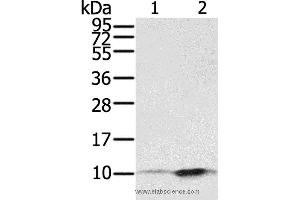 Western Blotting (WB) image for anti-S100 Calcium Binding Protein P (S100P) antibody (ABIN2430789)