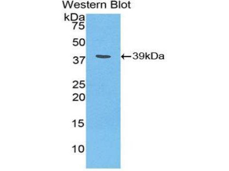 Western Blotting (WB) image for anti-Hepcidin Antimicrobial Peptide (HAMP) (AA 23-84) antibody (ABIN1859136)
