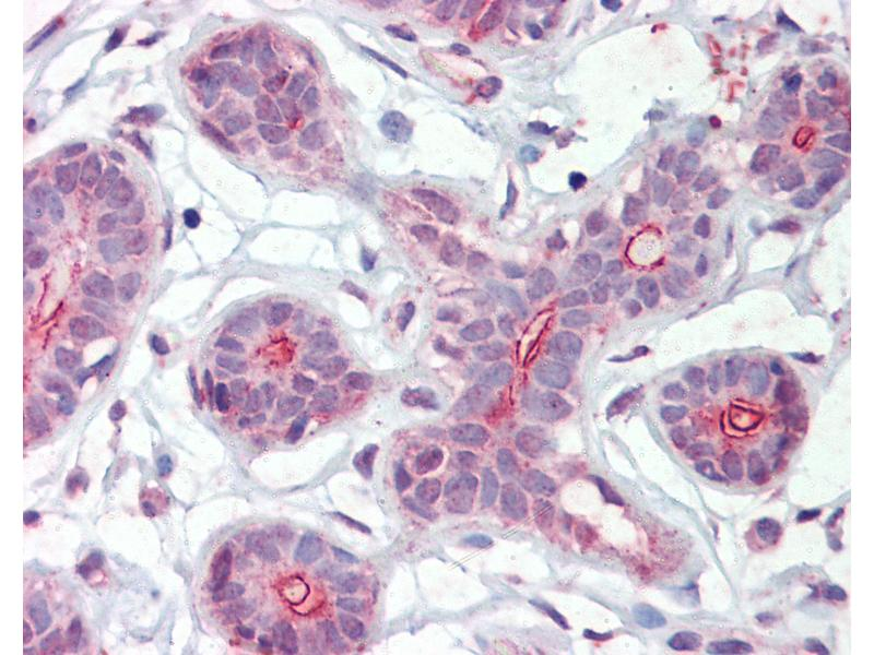 Immunohistochemistry (IHC) image for anti-Death-Associated Protein Kinase 2 (DAPK2) (AA 359-370) antibody (ABIN462279)