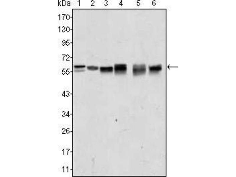 Western Blotting (WB) image for anti-V-Akt Murine Thymoma Viral Oncogene Homolog 2 (AKT2) antibody (ABIN1724720)