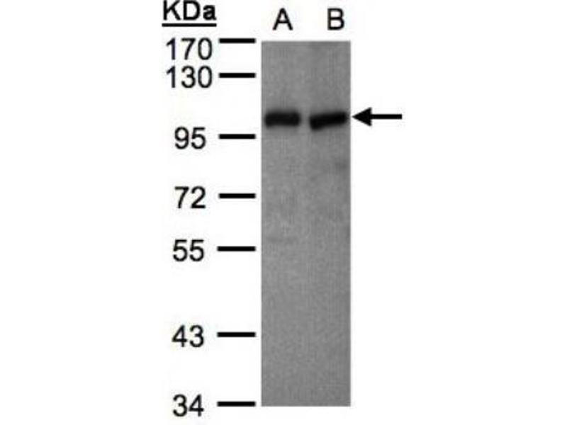 Western Blotting (WB) image for anti-Vav 1 Oncogene (VAV1) (Center) antibody (ABIN441430)