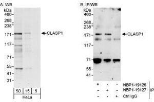 Western Blotting (WB) image for anti-CLASP1 antibody (Cytoplasmic Linker Associated Protein 1) (ABIN438955)
