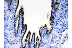 Image no. 1 for anti-Agouti Related Protein Homolog (Mouse) (AGRP) (AA 82-131) antibody (ABIN5693160)