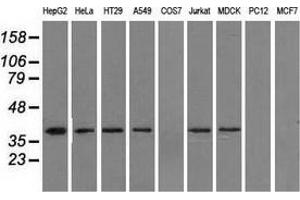 Image no. 2 for anti-Isocitrate Dehydrogenase 3 (NAD+) alpha (IDH3A) antibody (ABIN2723868)