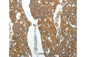 Immunohistochemistry (IHC) image for anti-rho-Associated, Coiled-Coil Containing Protein Kinase 1 (ROCK1) antibody (ABIN2422119)