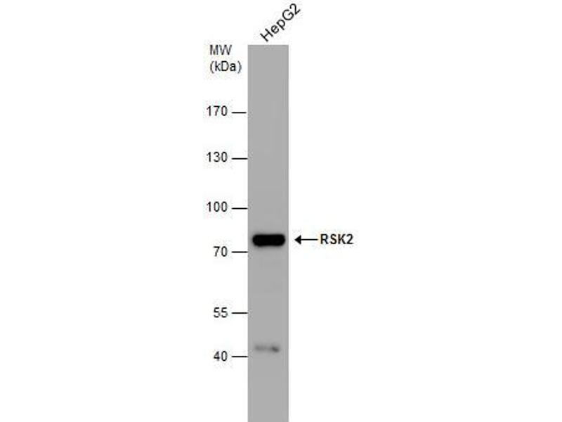 Western Blotting (WB) image for anti-RPS6KA3 antibody (Ribosomal Protein S6 Kinase, 90kDa, Polypeptide 3) (Center) (ABIN2856119)
