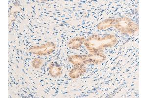 Immunohistochemistry (IHC) image for anti-Epidermal Growth Factor Receptor (EGFR) (pSer1071) antibody (ABIN6256098)