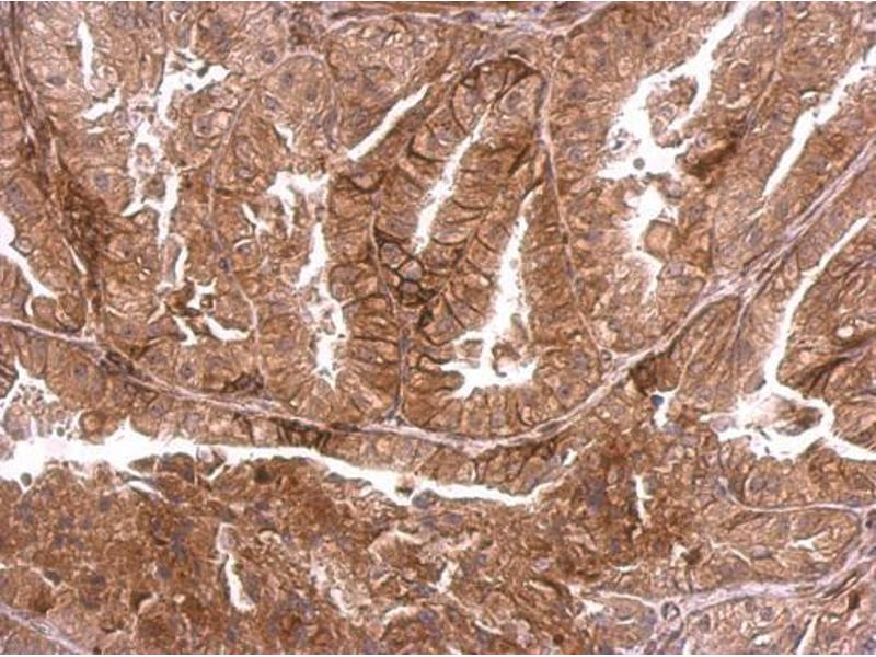 Immunohistochemistry (IHC) image for anti-Dystrophia Myotonica-Protein Kinase (DMPK) (Center) antibody (ABIN2854986)