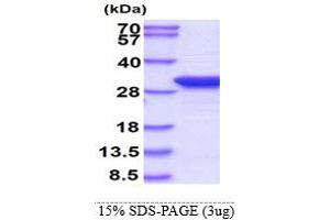 Image no. 1 for Thiopurine S-Methyltransferase (TPMT) (AA 1-245) protein (ABIN666697)