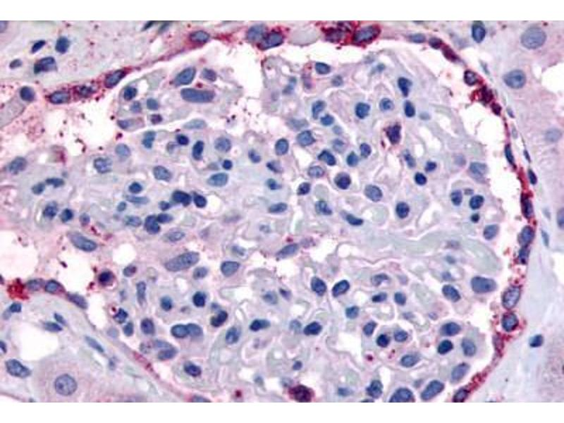 Immunohistochemistry (IHC) image for anti-EPH Receptor A4 (EPHA4) (Internal Region) antibody (ABIN1048571)