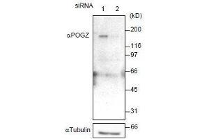 Image no. 1 for anti-Pogo Transposable Element with ZNF Domain (POGZ) (AA 1-562) antibody (ABIN2452078)