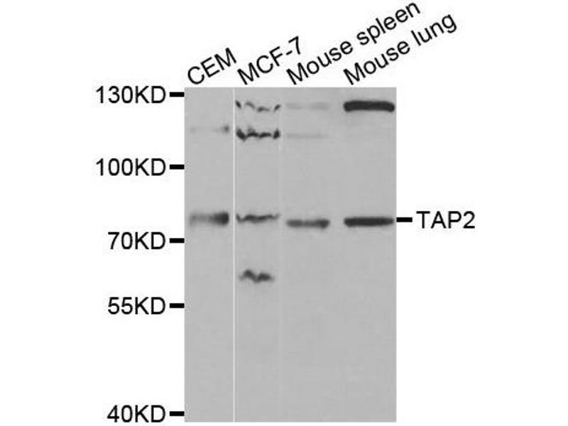 Western Blotting (WB) image for anti-Transporter 2, ATP-Binding Cassette, Sub-Family B (MDR/TAP) (TAP2) antibody (ABIN1875021)