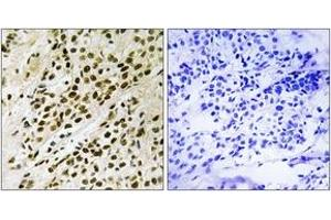 Immunohistochemistry (IHC) image for anti-MAPKAP Kinase 5 antibody (Mitogen-Activated Protein Kinase-Activated Protein Kinase 5) (pThr182) (ABIN1532150)