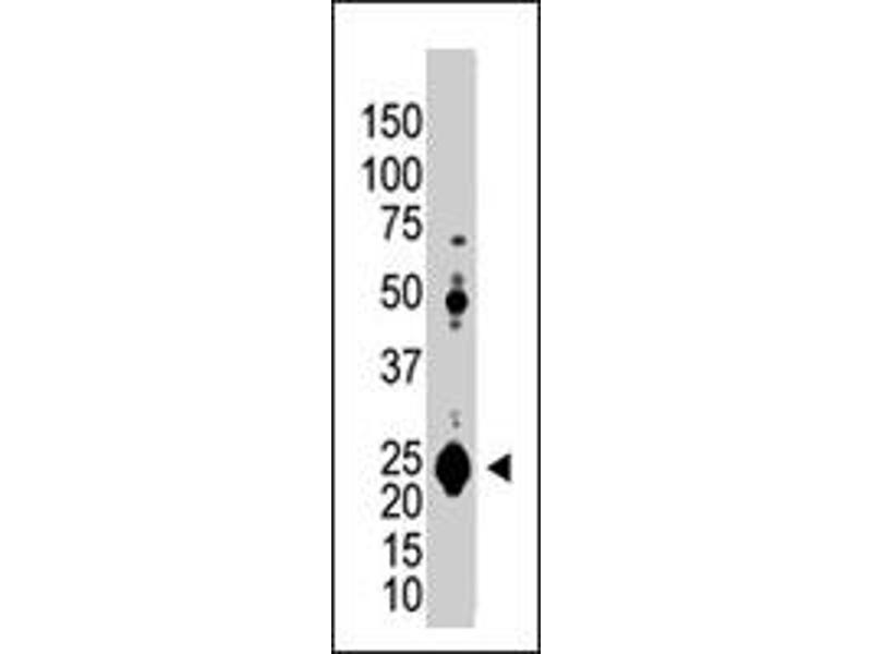 Western Blotting (WB) image for anti-Ubiquitin Carboxyl-terminal Esterase L1 (Ubiquitin Thiolesterase) (UCHL1) antibody (ABIN544860)