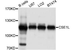 Image no. 1 for anti-CSE1 Chromosome Segregation 1-Like (Yeast) (CSE1L) antibody (ABIN6571992)