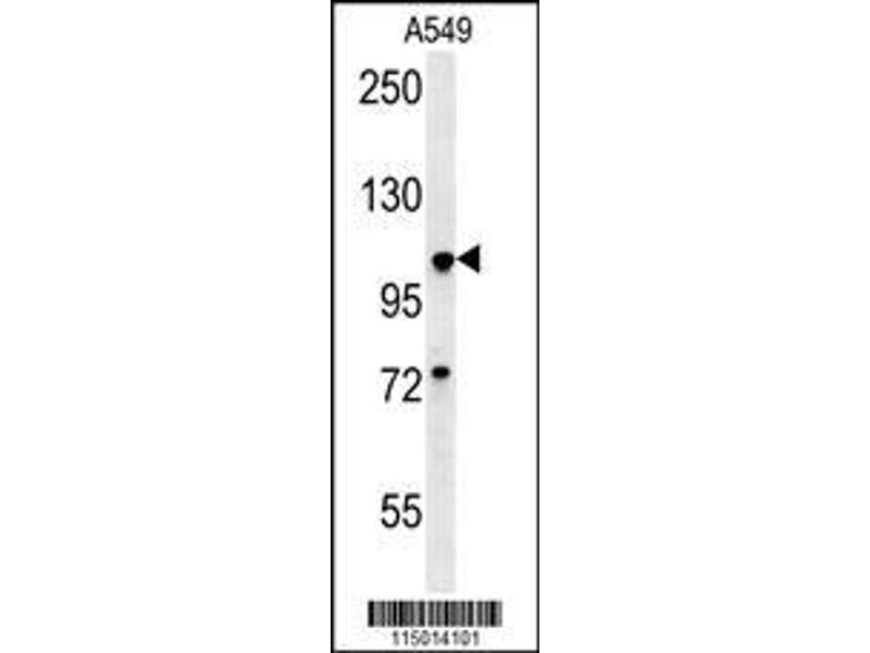 Western Blotting (WB) image for anti-Budding Uninhibited By Benzimidazoles 1 Homolog (Yeast) (BUB1) (AA 1-30), (N-Term) antibody (ABIN651630)