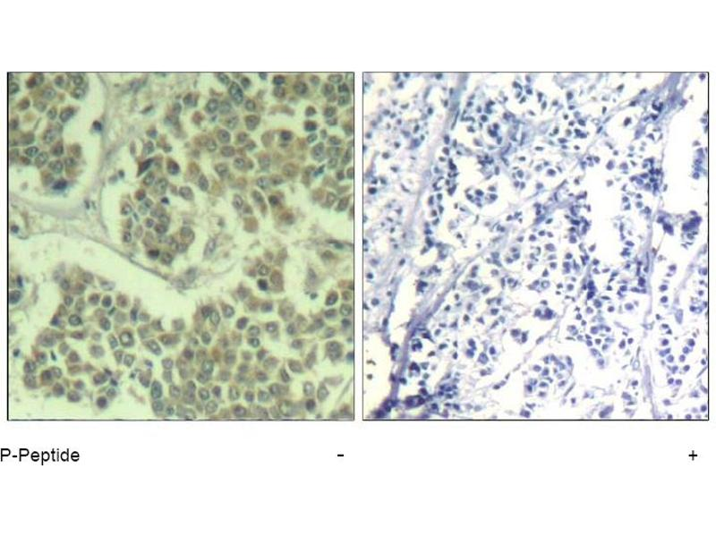 Image no. 1 for anti-Eukaryotic Translation Initiation Factor 2 Subunit 1 (EIF2S1) (pSer49) antibody (ABIN319275)