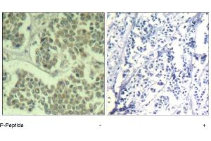 image for anti-Eukaryotic Translation Initiation Factor 2 Subunit 1 (EIF2S1) (pSer49) antibody (ABIN319275)