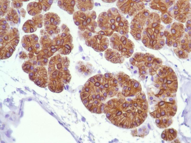 Immunohistochemistry (IHC) image for anti-Keratin 18 (KRT18) (C-Term) antibody (ABIN1687808)